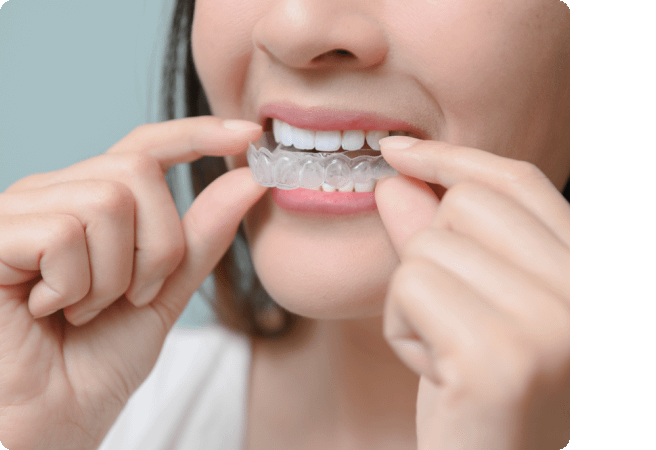 Wellington Dentist specialises in Invisalign